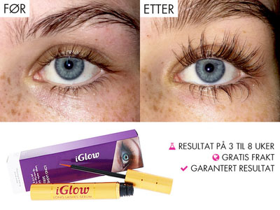 iGlow Long Lashes Serum - Vippeserum big image 0